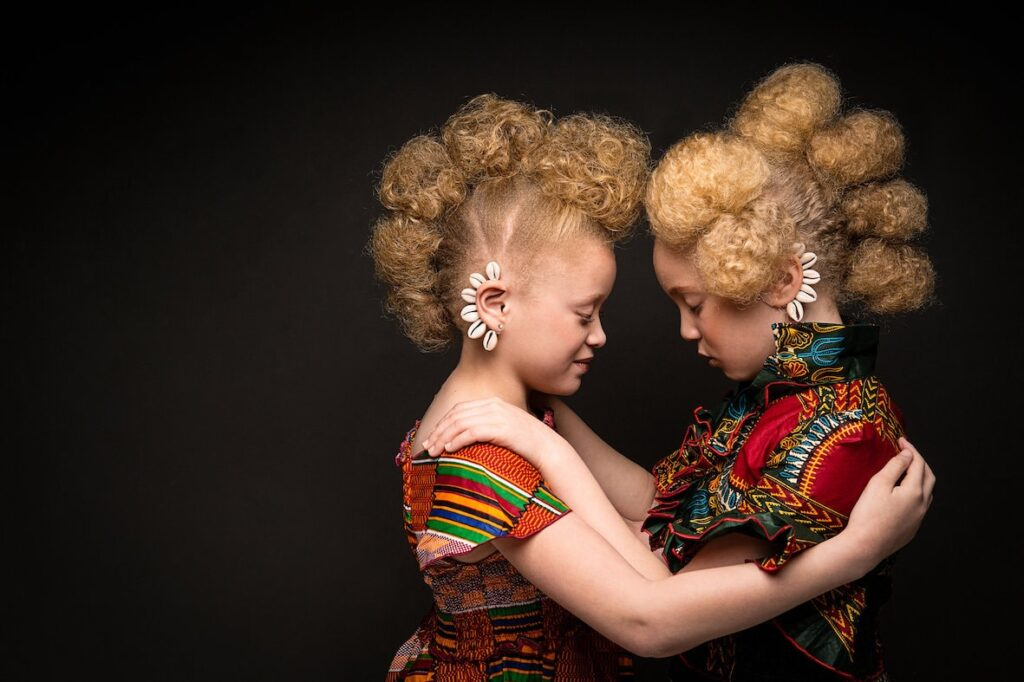 Shinning a light on the persecution of people with albinism in East Africa.
